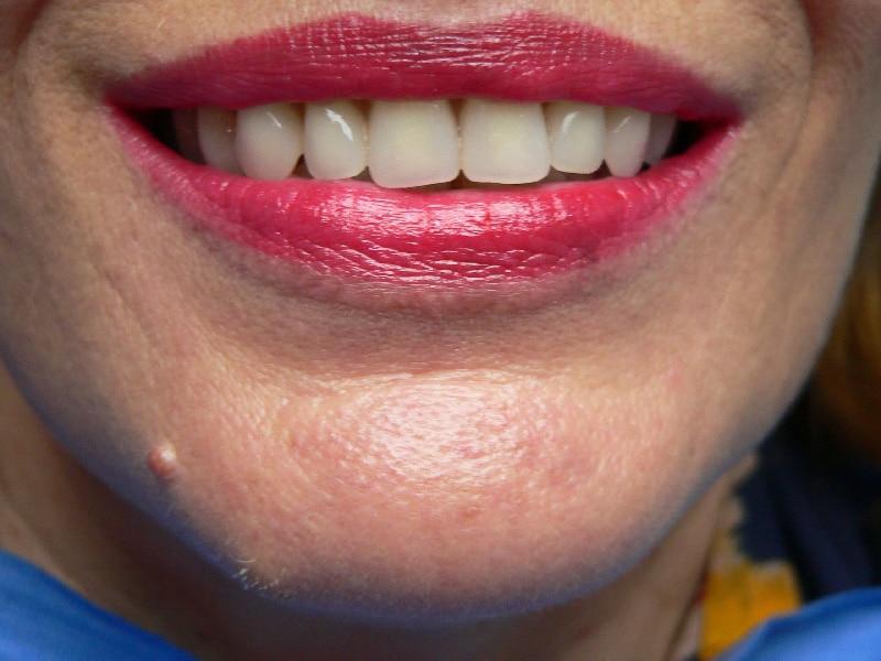 Résultat final de la technique Quattro, dentiste Patrick Boutboul