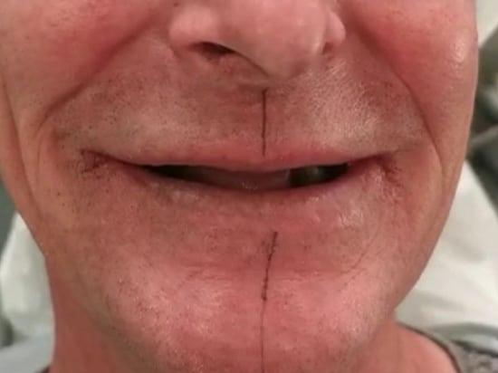 Resultat solution quattro avant chez le dentiste Patrick Boutboul