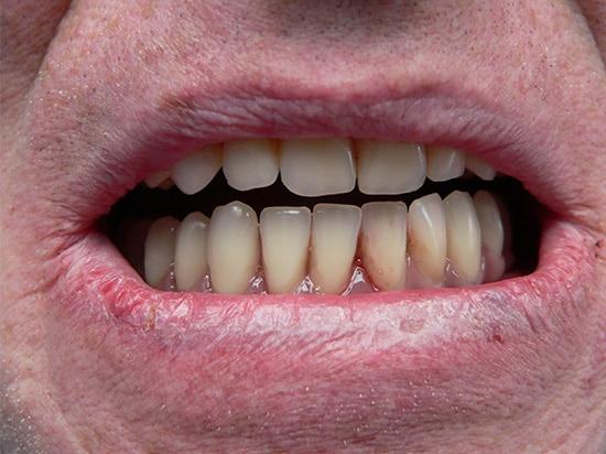 Resultat solution quattro apres chez le dentiste Patrick Boutboul
